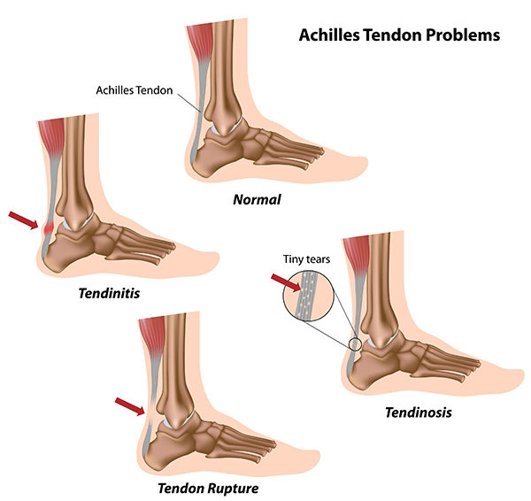 Achilles Tendonitis in Taylor