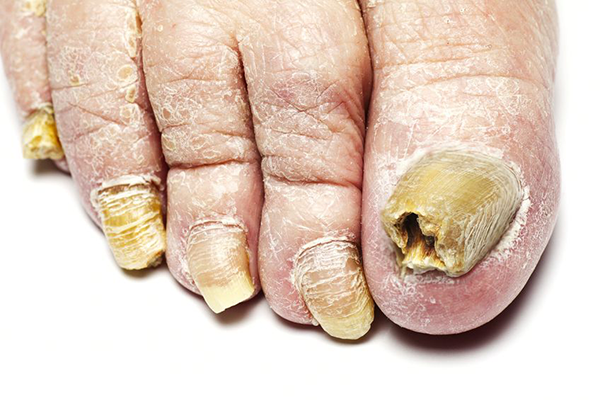 Fungal Nail Infection 48180